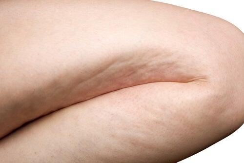 1#:zredukuj-cellulit-dzieki-prostym-cwiczeniom.jpg
