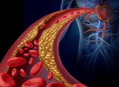 1#:Triglicerydy – jak obniżyć ich poziom.jpg