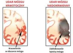 1#:krokdozdrowia.pl/udar-mozgu-objawy/.jpg
