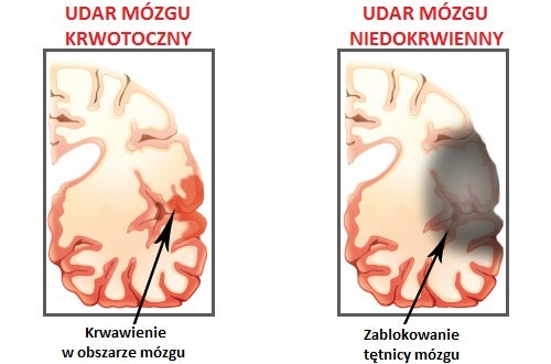 Udar mózgu - objawy i przyczyny