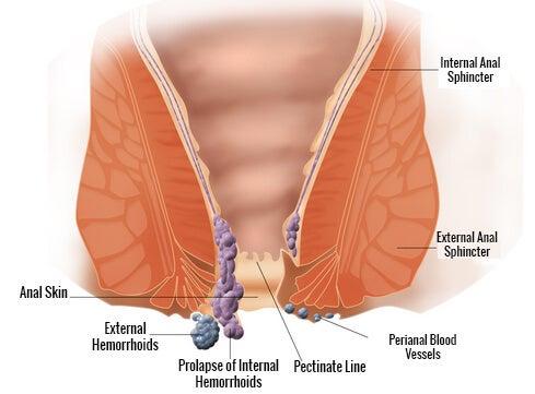 Schemat tworzenia się hemoroidów