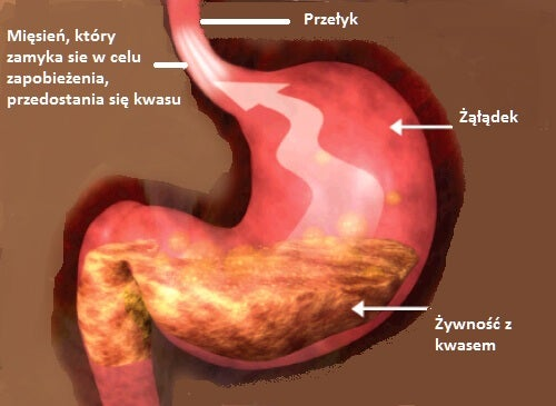 Refluks żołądkowo-przełykowy i właściwa dieta