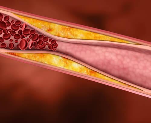 Rośliny lecznicze redukujące cholesterol
