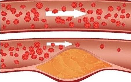 2#:cholesterol.jpg