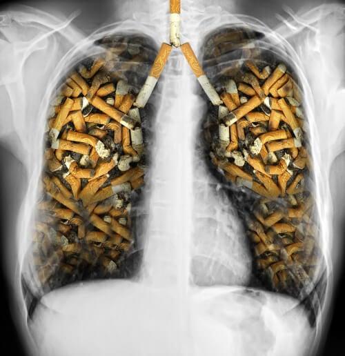 Płuca wypełnione petami