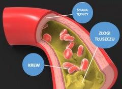 1#:jak-obnizyc-poziom-cholesterolu/.JPG