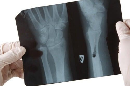 1#:Wrogowie zdrowych kości.jpg