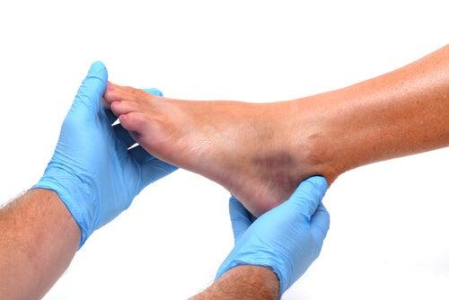 3#:Spuchniete stopy-nerki.jpg