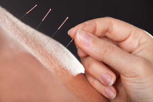 Akupunktura, czyli igiełki na skórze