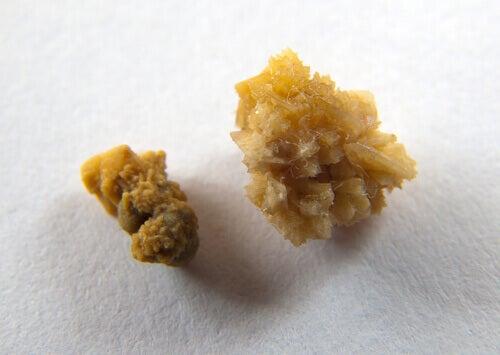 Kamienie nerkowe – jak do nich nie dopuścić?