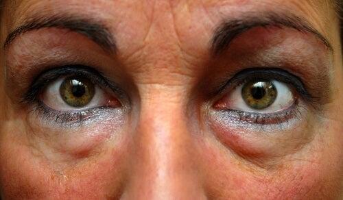 Worki pod oczami – jak je zwalczyć?