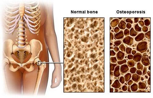 Jak zapobiec osteoporozie – porady dietetyczne