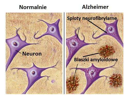 Produkty które cię ochronią przed Alzheimerem