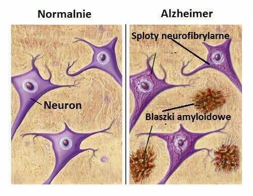 Produkty, które cię ochronią przed Alzheimerem!