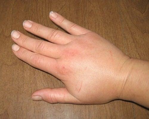 Retencja wody na dłoniach