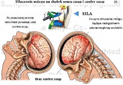 2#:Urazy mózgu-mózg.jpg