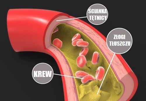 chlesterol w tętnicy