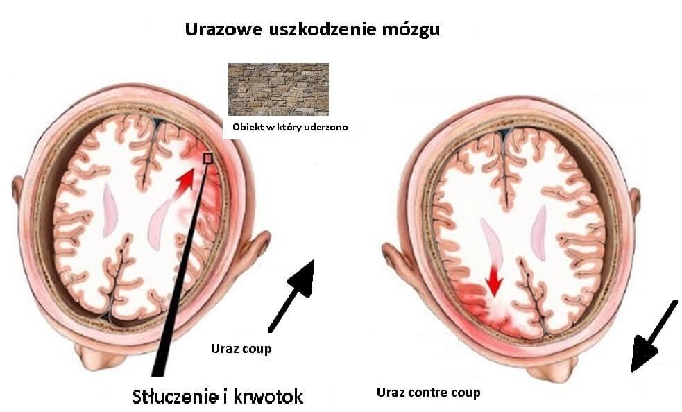 3#:uderzenie-mózg.jpg