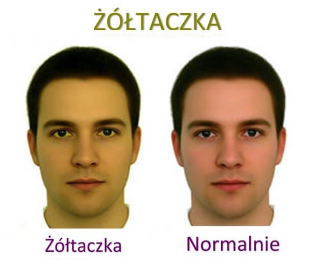 2#:skóra.jpg