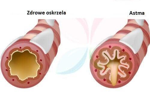 Astma – jakie produkty powinniśmy spożywać?