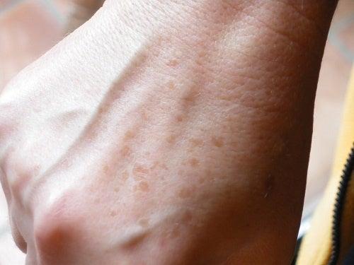Jak usunąć przebarwienia na rękach?