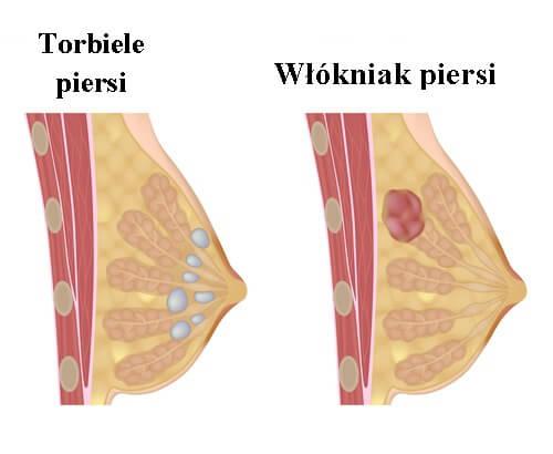 2#:Torbiele w piersi-piersi.jpg