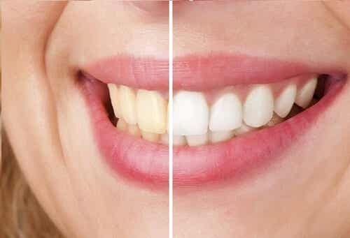 Wybielanie zębów: 5 naturalnych sposobów