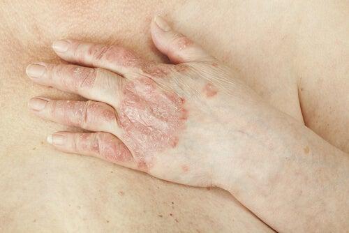 Łuszczyca na dłoniach