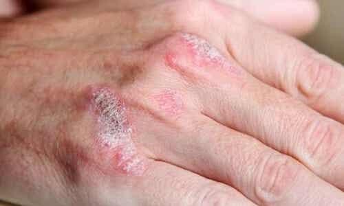 Łuszczyca i jej naturalne leczenie