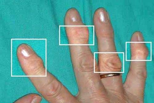 Zapalenie stawów - Naturalne leczenie