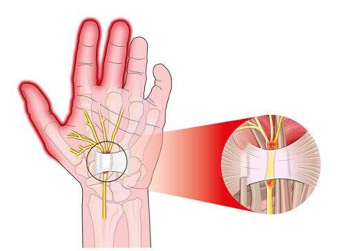 ból dłoń