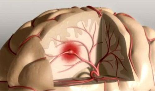 Jak uniknąć udaru mózgu?
