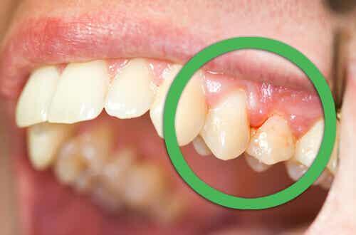 Zapobiegnij dolegliwościom jamy ustnej!