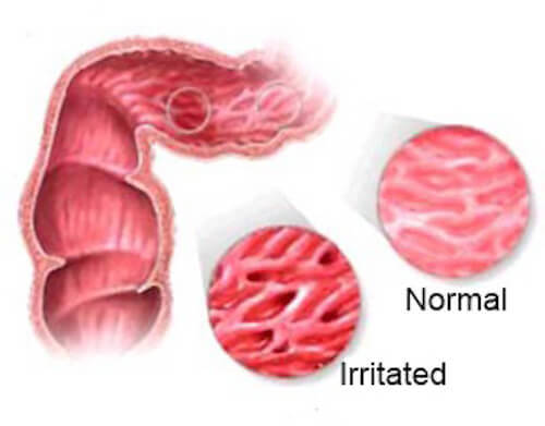 Napary łagodzące objawy zespołu jelita drażliwego