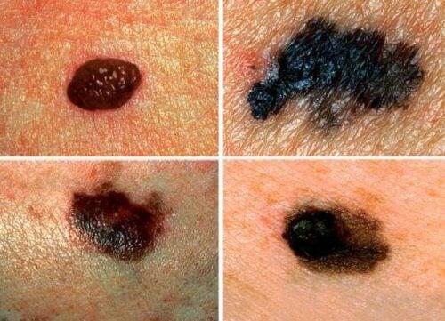 Rak skóry – Nausz się go rozpoznawać!