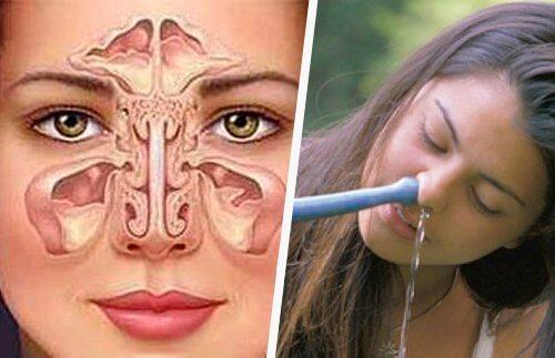 Udrażanienie nosa