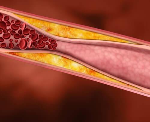 Cholesterol na ścianach tętnicy