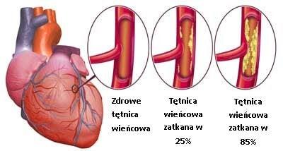 3#:Niewydolnosc serca-choroby serca.jpg