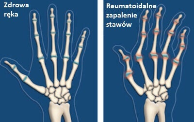 3#:artretyzm.jpg