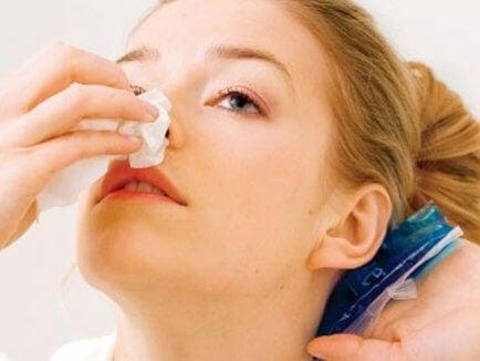 Krwawienie z nosa: co zrobić?