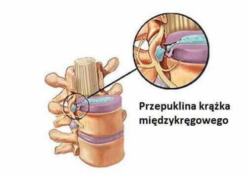 Przepuklina kręgosłupa, czyli wypadający dysk
