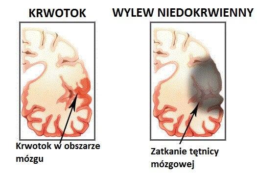 2#:udaru.mózgu.jpg