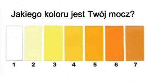 Barwa moczu