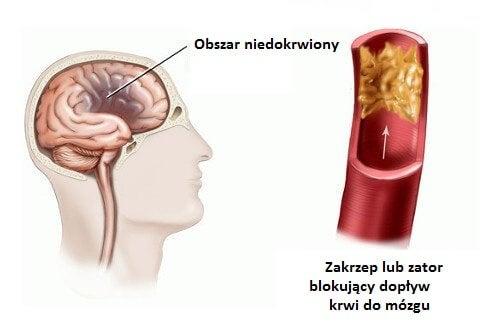 1#:udar-mózgu-u-kobiet-czynniki-ryzyka.jpg