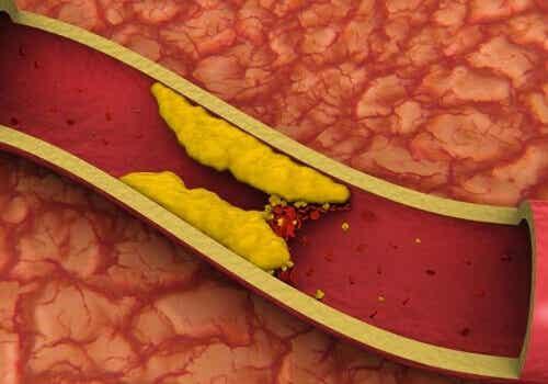 Obniż cholesterol korzystając ze starożytnej chińskiej metody!