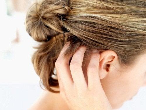 Swędząca skóra głowy a włosy