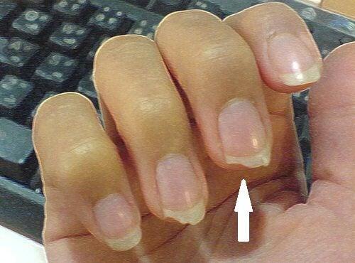 4#:Obgryzanie-paznokci.