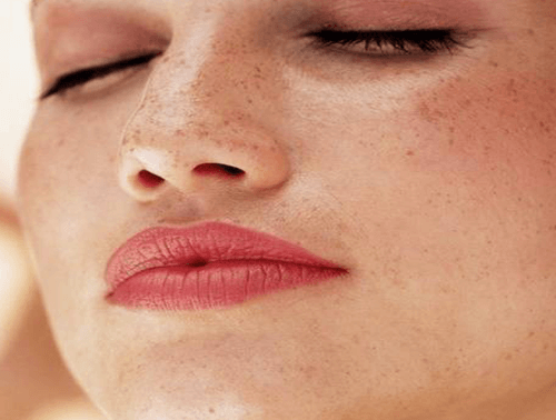 Jak usunąć przebarwienia i plamy na skórze?