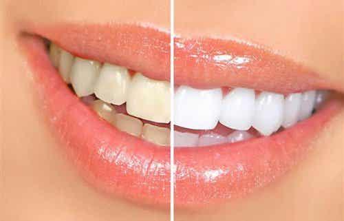 Marzą Ci się białe zęby? Unikaj tych produktów!