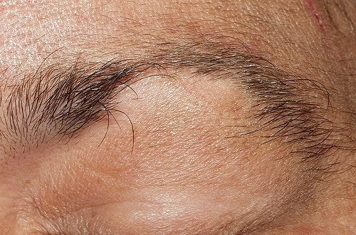 Łysienie brwi i rzęs – Jak je zwalczyć?